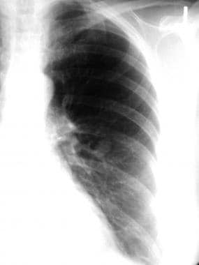 A left upper lobe solitary pulmonary nodule. The d