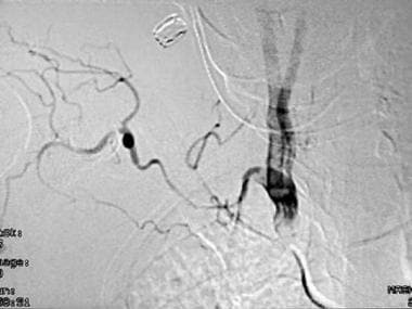 A 45-year-old woman with symptoms of progressive r