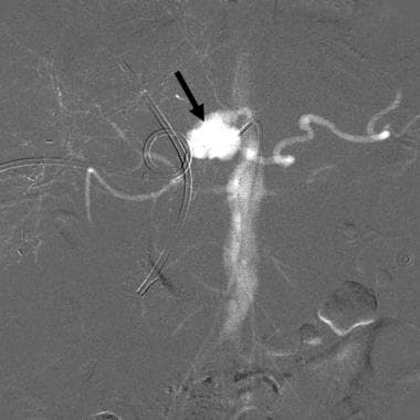 CO2 celiac angiogram in a patient with gastrointes