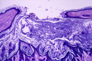 Dilated Pore Of Winer Workup Procedures Histologic Findings