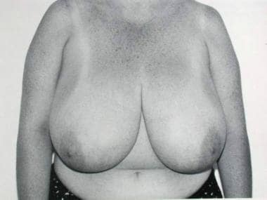 Preoperative status of breasts with lateral nipple