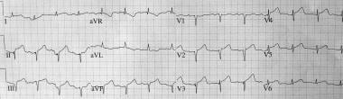 Electrocardiogram of a patient with takotsubo card