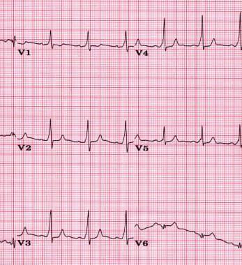 ECG demonstrating ventricular preexcitation. A del