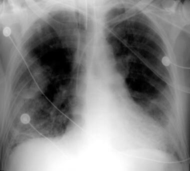 Anteroposterior portable chest radiograph in patie
