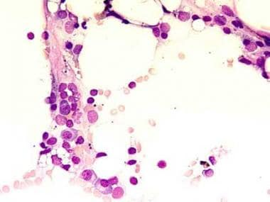 This bone marrow film at 400X magnification demons