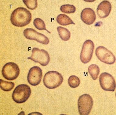 Peripheral smear from a patient with beta-zero tha