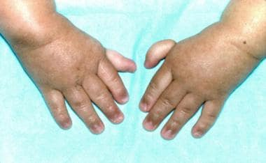 Thumbs attached by threads on a 3-year-old patient