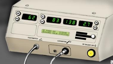 Radiofrequency ablation console (VNUS Medical Tech