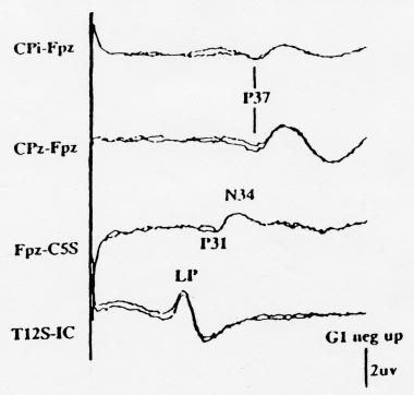 Normal posterior tibial nerve somatosensory evoked