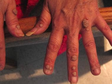 Verrucous warts in a patient with HIV infection.