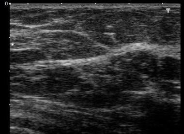 Normal breast ultrasound. The woman is older than