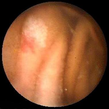 Hemorrhagic telangiectasia.