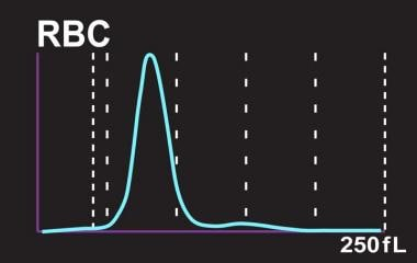 RBC size distribution histogram from a Sysmex SE-2