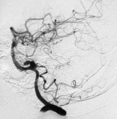 An angiogram showing a bilobed aneurysm of a poste