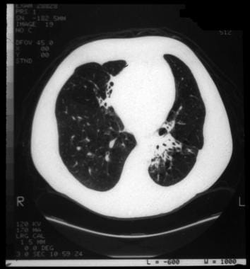 Cystic fibrosis, thoracic. Bronchiectatic changes