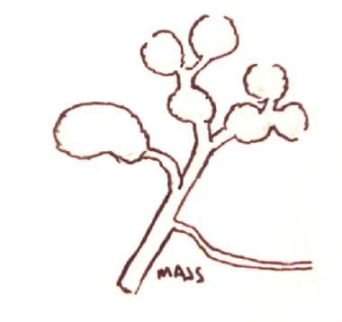 Type V choledochal cyst (Caroli disease).