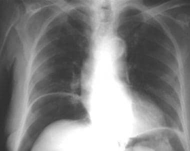 Chest radiograph. Free gas under the diaphragm cau