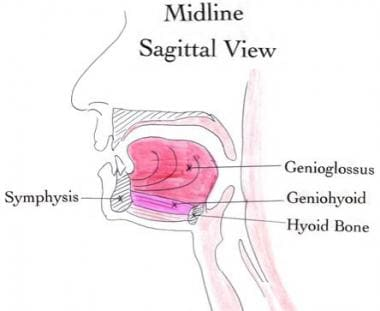 This midline sagittal drawing illustrates the ante