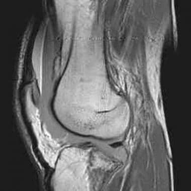 Tibial plateau fractures. MRI of the knee in a pat