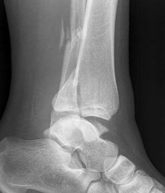 Lateral radiograph from a 27-year-old woman with a