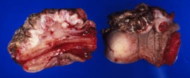 Squamous cell carcinoma of the penis: This lesion