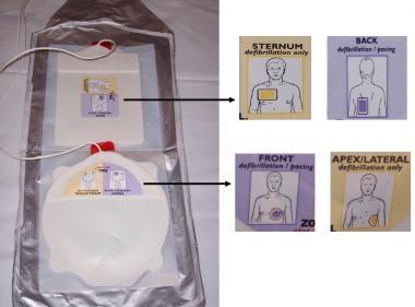 Pacing electrode pads of external pacing unit and