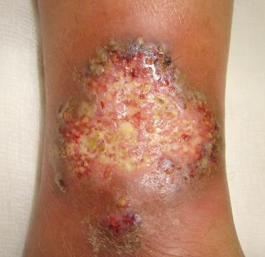 Close-up view of pyoderma gangrenosum in a patient