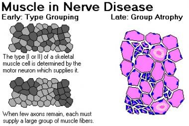 Muscle in nerve disease. Image courtesy of Dr. Fri
