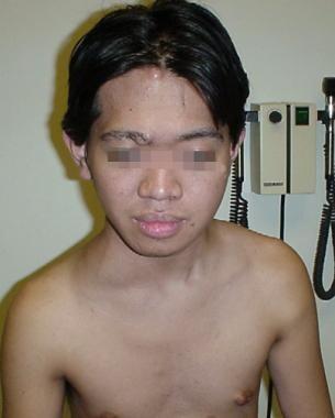 Facial asymmetry, OS proptosis, and exotropia, as