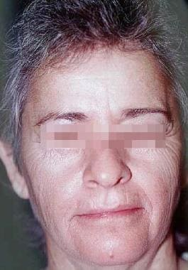 Laser tissue resurfacing. Female patient with skin