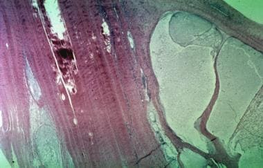 Cystic mass (ganglion) on right arising from peron