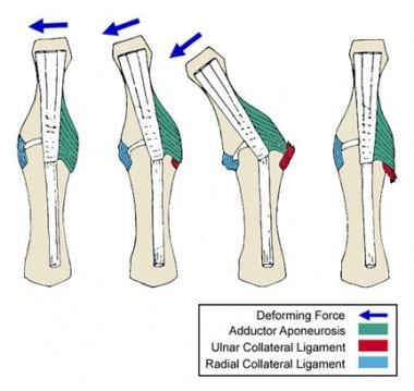 Displacement of the ulnar collateral ligament by t