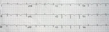 Electrocardiogram from the same patient examined i