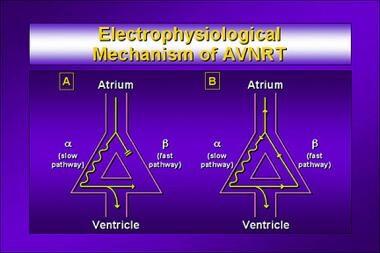 Electrophysiological mechanism of atrioventricular