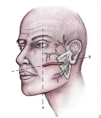 Location of parotid gland and duct system.