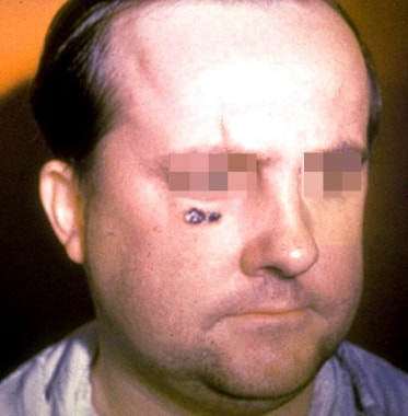 Skin lesion of anthrax on face. Image courtesy of