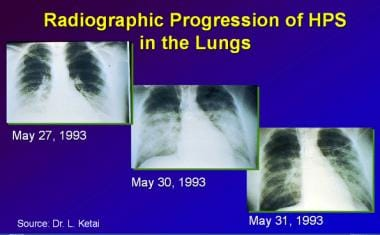 Chest radiographic progression of Hantavirus cardi