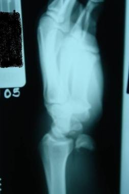 Dislocations, wrist. Lateral view of a lunate disl