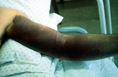 Bunyavirus infection. Ecchymoses encompassing left