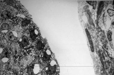 Electron micrograph of a skin sample shows cleavag
