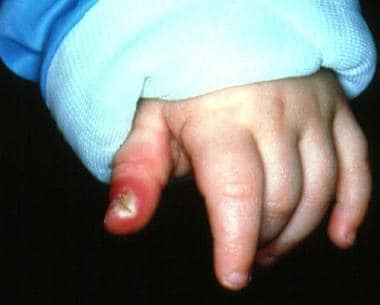 Herpetic whitlow in an infant with concomitant pri