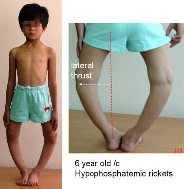 Hypophosphatemic rickets is disturbance in vitamin
