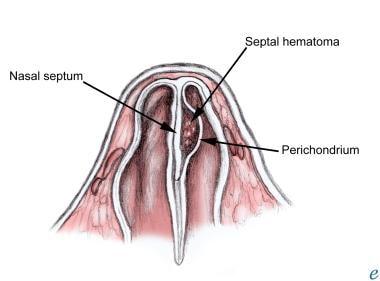 Nasal septal hematoma.