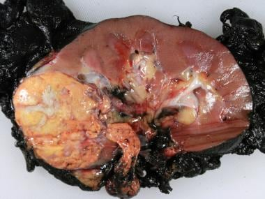 Typical gross presentation of clear cell renal cel