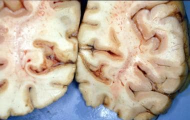 Laminar necrosis of medial portions of the right a