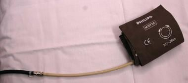A photograph showing a blood pressure cuff with at