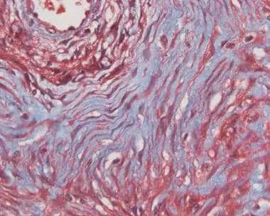 Image 28:Tumor cells typically insinuating through