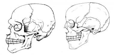 Lateral views of male (left) and female skulls (ri