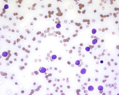 Blasts of acute undifferentiated leukemia.