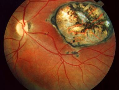 Macular scar secondary to congenital toxoplasmosis